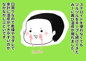【アトピー】恐れていたことが…!