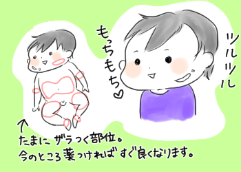 【アトピー】プロアクティブ療法の経過