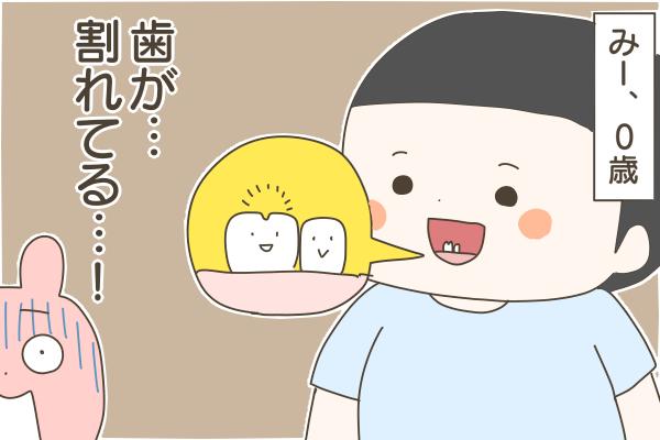 ハート型の乳歯「癒合歯」が生えてきた次男。果たして永久歯は無事2本生えてくるのか…!?