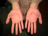 赤くなった手