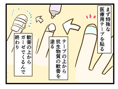 4coma_166_08