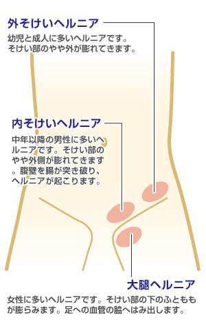 sokei01