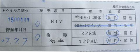 HIV検査結果