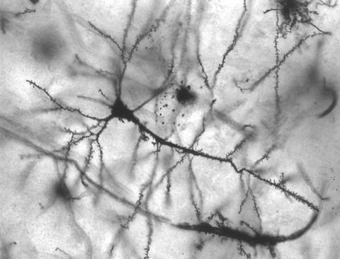 脳のニューロン細胞