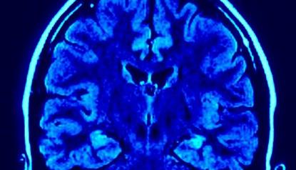 脳波インターフェース