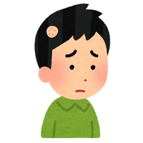 円形脱毛症(十円ハゲ)