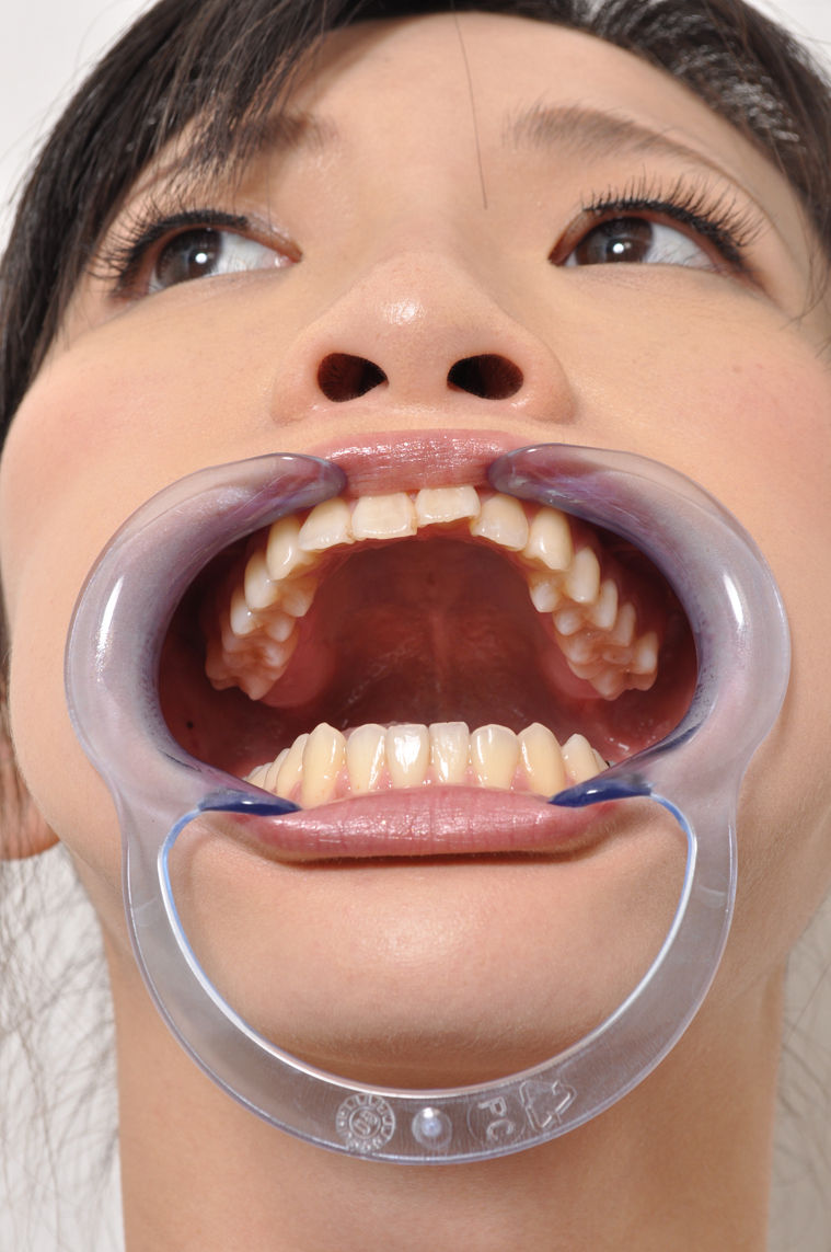 Dental Gag Porn 20