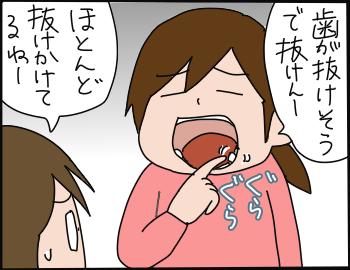 歯の抜き方1
