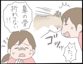 歯の抜き方5