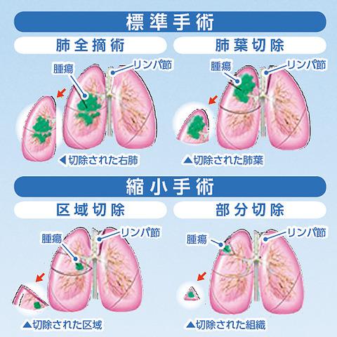 LungCancerOpe001