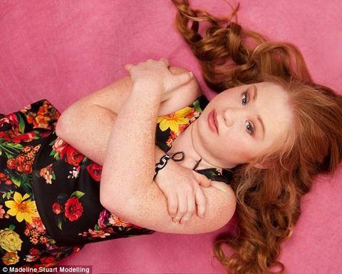 ダウン症の美少女が、モデルデビューした結果wwwww(※画像)のサムネイル画像