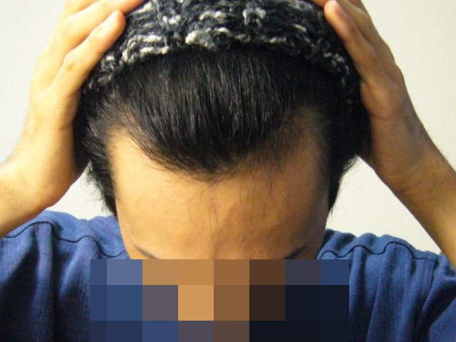 hair2010-04_02