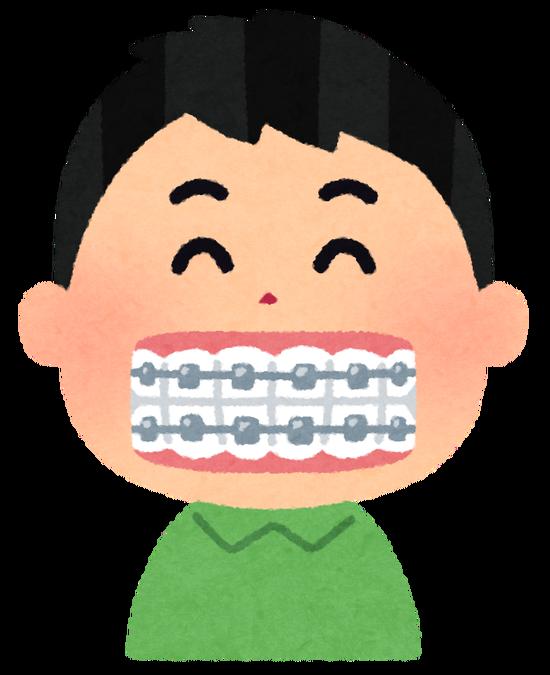 ワイ矯正のために健康な歯を4本抜いてしまう・・・