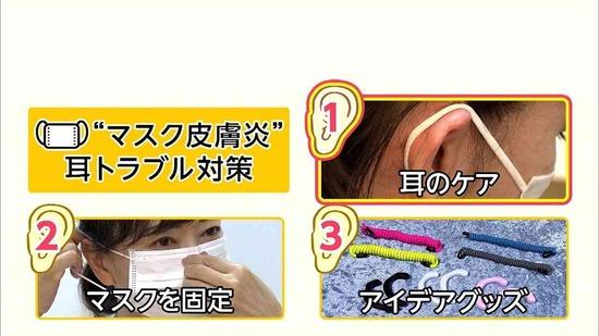 """【画像】""""マスク皮膚炎""""がガチでヤバすぎる・・・"""