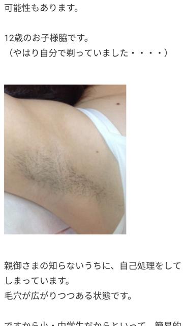 【画像】12歳の女の子が脇毛ボーボーでワロタwwwwwwwww