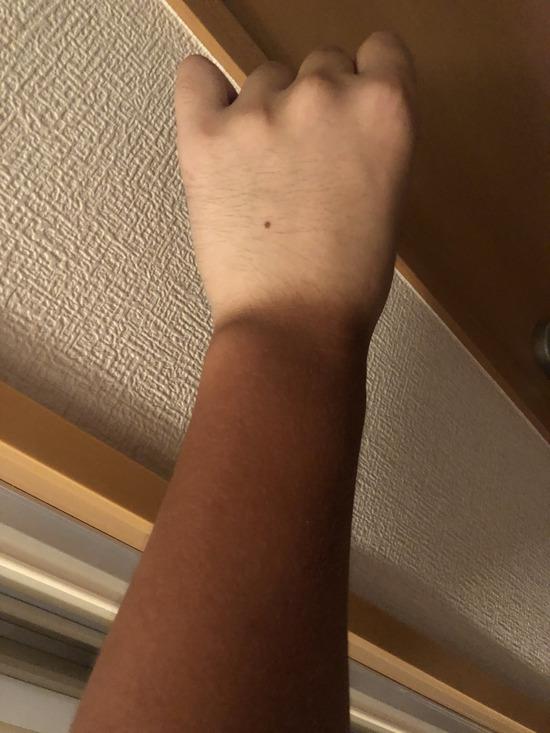 【画像】日焼けで俺の腕が完全におさるのジョージになってしまったのだが…