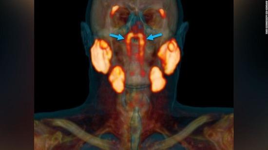 人の喉に未知の臓器を発見、オランダ研究チーム発表キタ━━━━(゚∀゚)━━━━!!