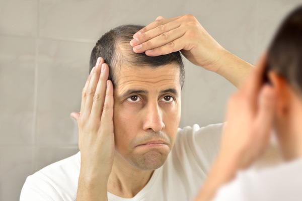 balding-and-greying001-thumb-720xauto