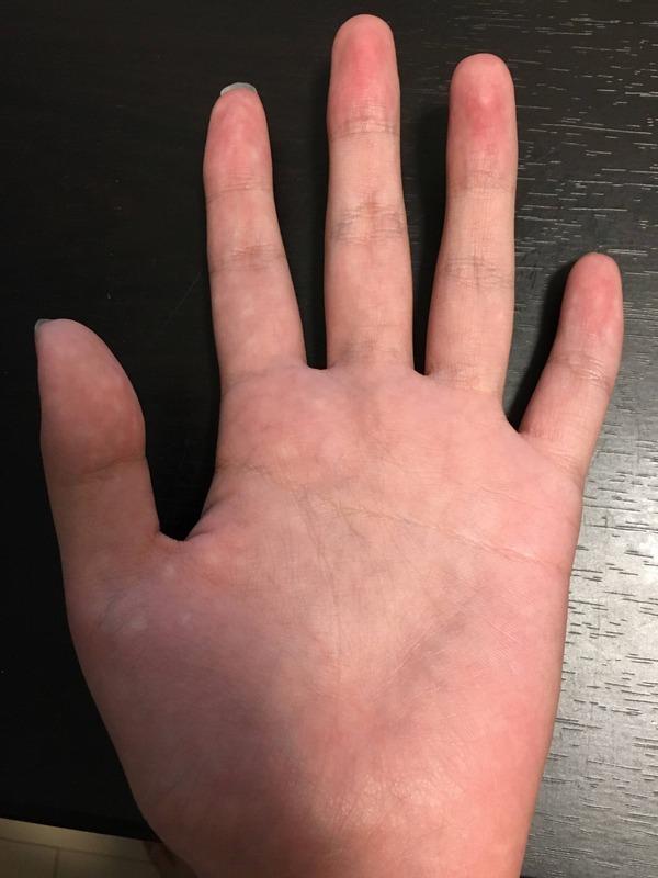 【悲報】わいの指おかしい
