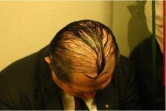 積極的にイジるのは絶対NG……男性の薄毛に対する正しいリアクションとは?