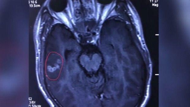 【恐怖!】中国人男性の脳から体長10センチの生きた条虫が摘出
