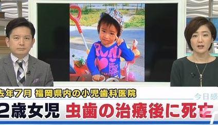 虫歯を治療した後に低酸素脳症で死亡した二歳の女の子 二歳で既に虫歯8本だった・・