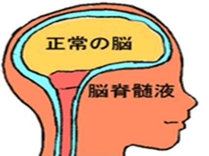 脳挫傷の後遺症か試験勉強で脳が痛む1