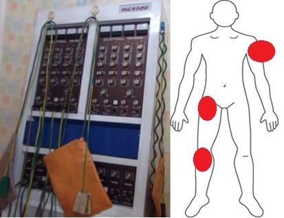 安い整骨院の低周波治療器でマッサージと僕の治療部位