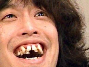 歯が無い事を