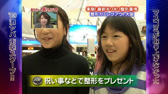 ◆◆◆ なぜ韓国人は顔が不細工なのか?  [無断転載禁止]©2ch.net->画像>61枚