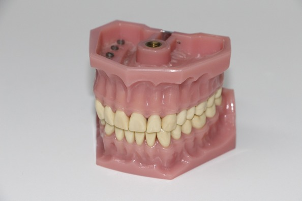 dentures-1514697_1920