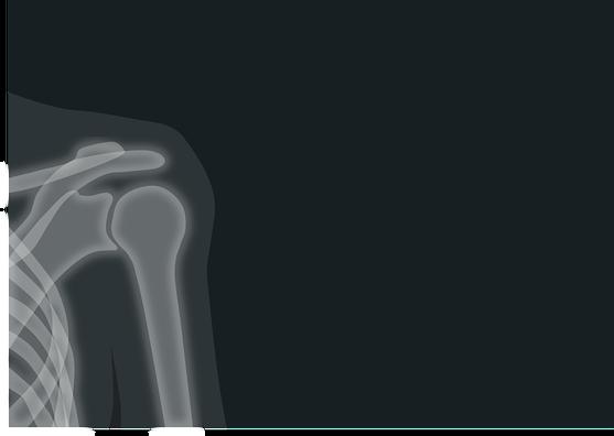 x-ray-1884888_960_720
