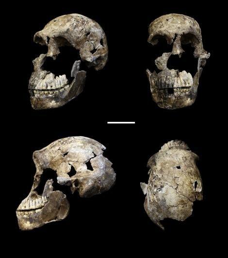 00大人の頭骨を四方向から撮影したもの