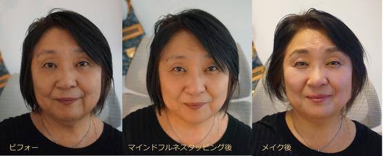小松さん ビフォーアフター
