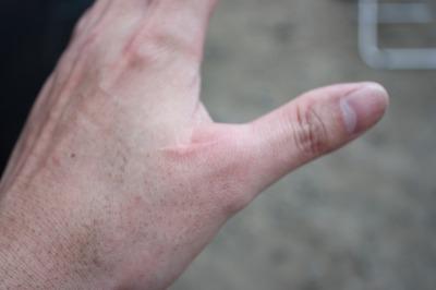 10.01.03練習で指が・・