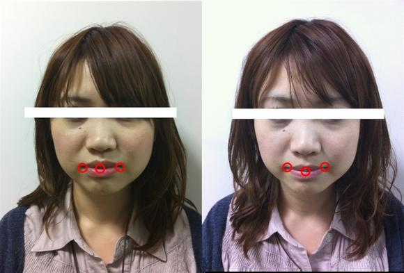 整顔 施術前後