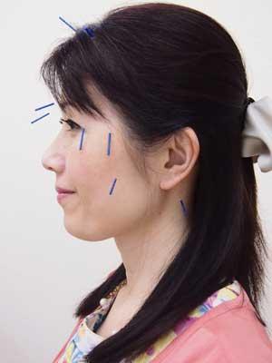 美容鍼_3