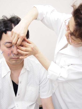 美容鍼灸と薬膳_5