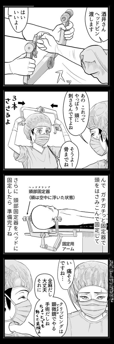 4panel048はじめての開頭手術②
