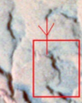 血管1 (3)