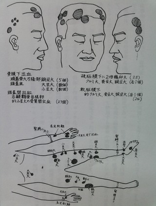 小畑達夫氏の屍体損傷図