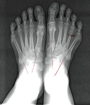 足の外科レントゲン