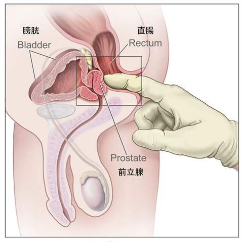 前立腺の場所
