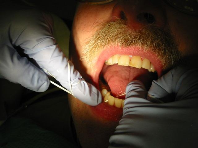 1280px-Dental_flossing_9344