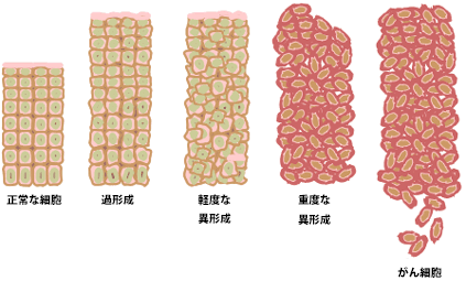 Cancer_progression_from_NIH_japanese