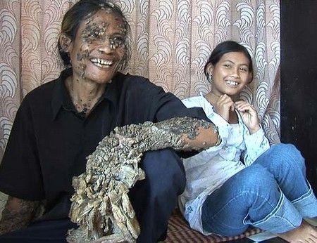 インドネシアの西ジャワ州出身 ...