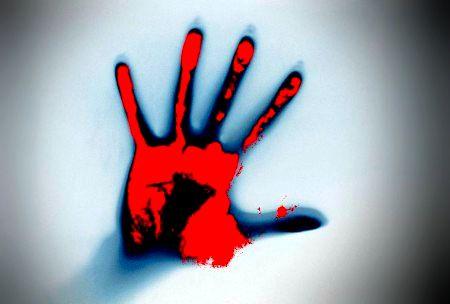 手の形の火傷