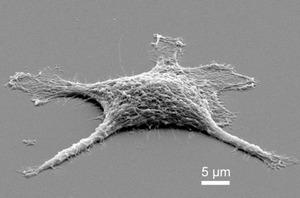 ゾンビ細胞