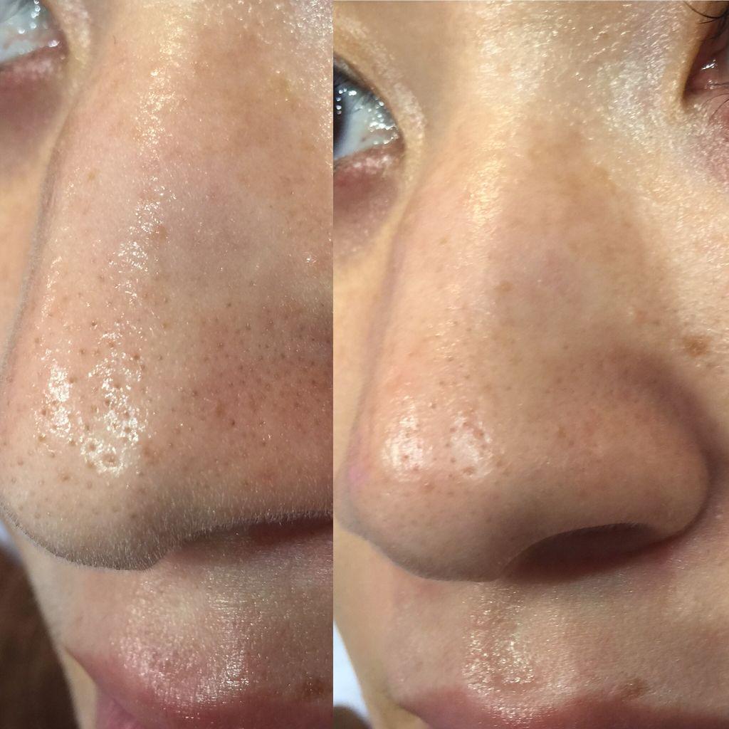 鼻 いちご いちご鼻の原因と改善方法|気になる黒ずみ毛穴のケア方法を解説【皮膚科医伝授】
