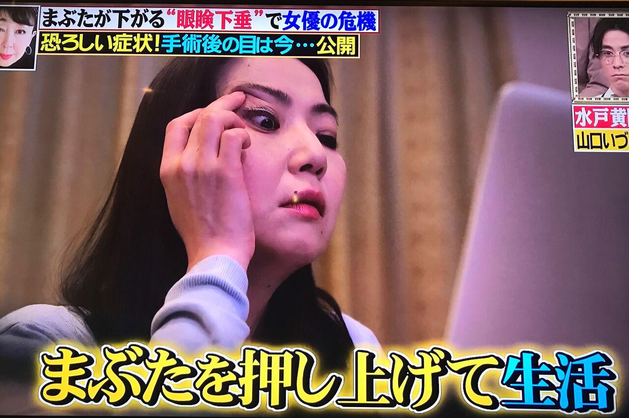 和田アキ子 瞼